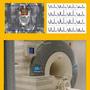 Visual Veranstaltung Proton MR Spectroscopy in Neuroradiological Diagnostics.