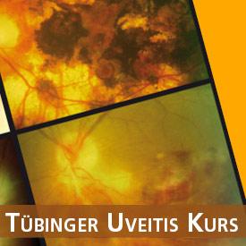 Visual Veranstaltung Tübinger Uveitis-Kurs 2017